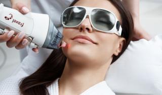 Лазерный фототермолиз: очищение, оздоровление и омоложение кожи