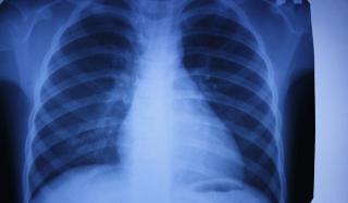 Рентген в Константиновке